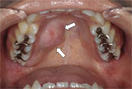 唾液腺の疾患|口腔外科相談室|...